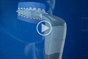 Acceledent video thumbnail Mountain View Orthodontics Las Vegas NV