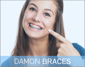 Damon Braces Mountain View Orthodontics Las Vegas NV