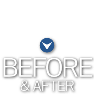 Before & After Mountain View Orthodontics Las Vegas NV